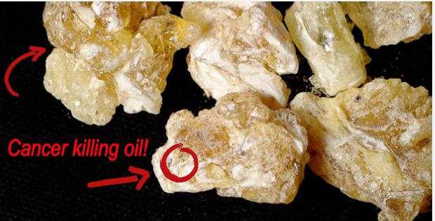 cancer killing frankincense